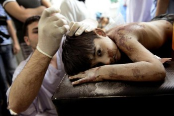 A Syrian boy receives treatment after he was wounded when shells, released by a helicopter from regime forces, hit his house in Aleppo last month. A new report from Save the Children details accounts of torture and killings of children during the Syrian conflict (Photo: Aris Messinis / AFP).
